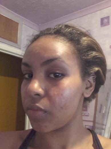 Summer 2012 - My Skin Flared up!